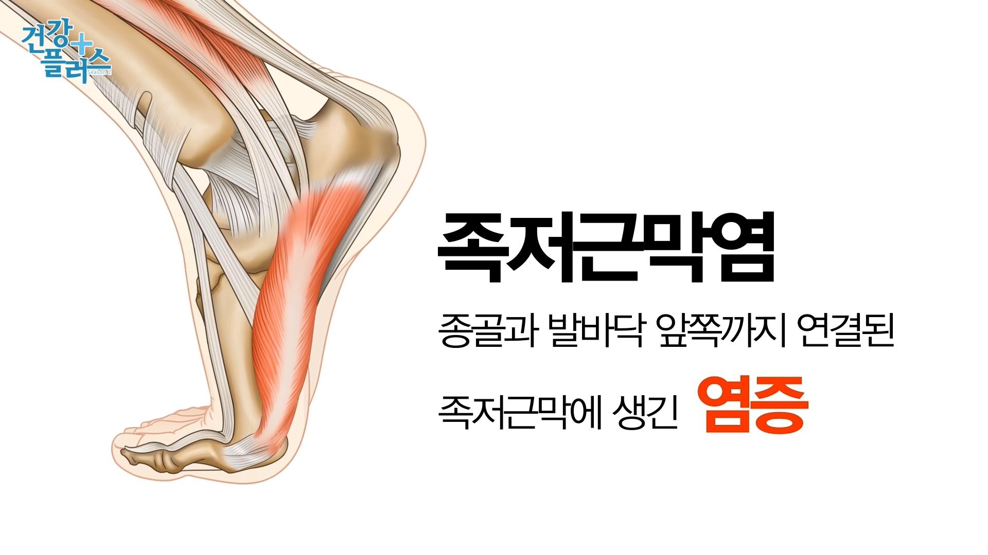 [건강+] 짜릿한 발바닥 통증 족저근막염