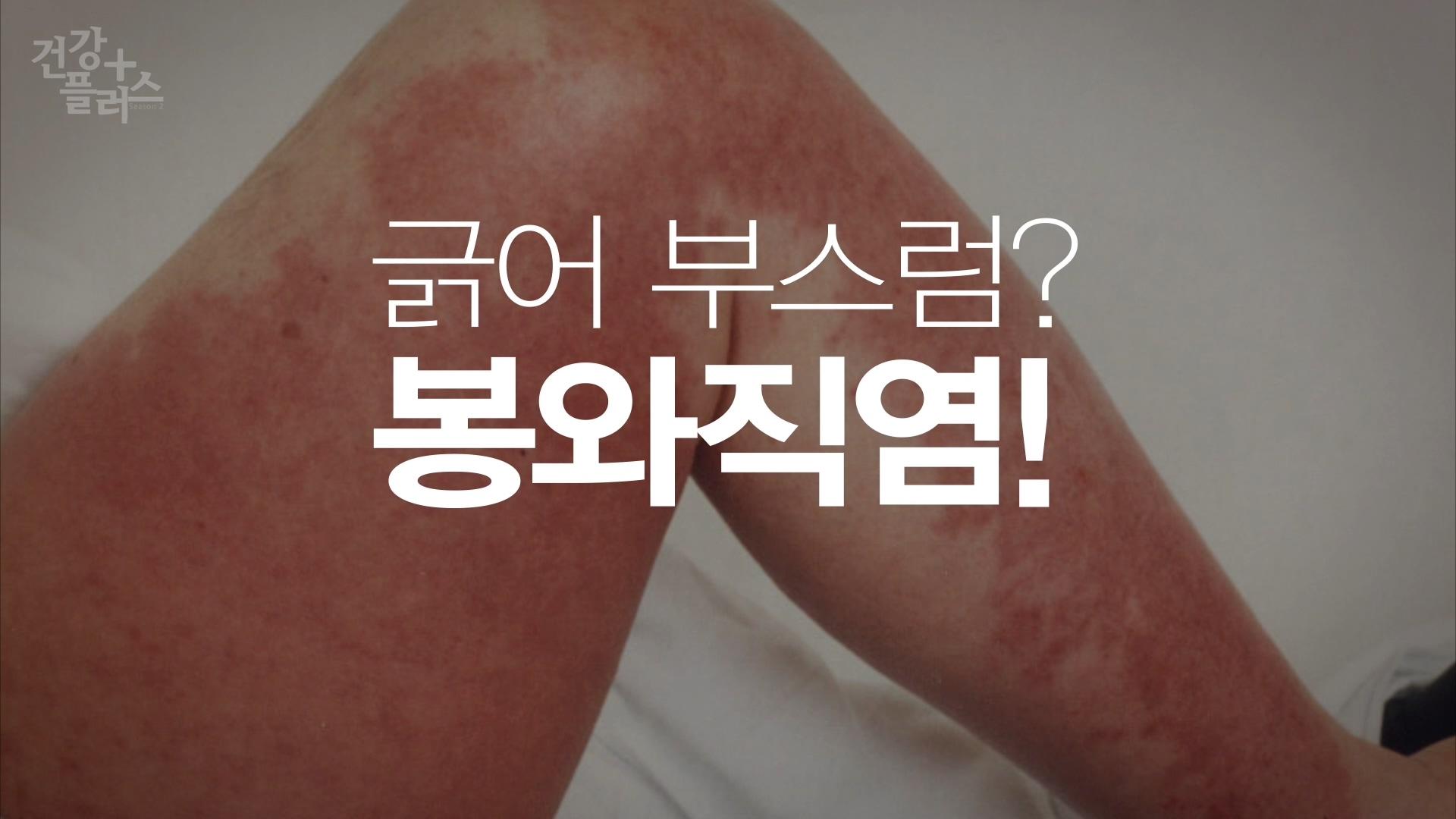 [건강+] 작은 상처가 불러온 감염질환, '봉와직염'