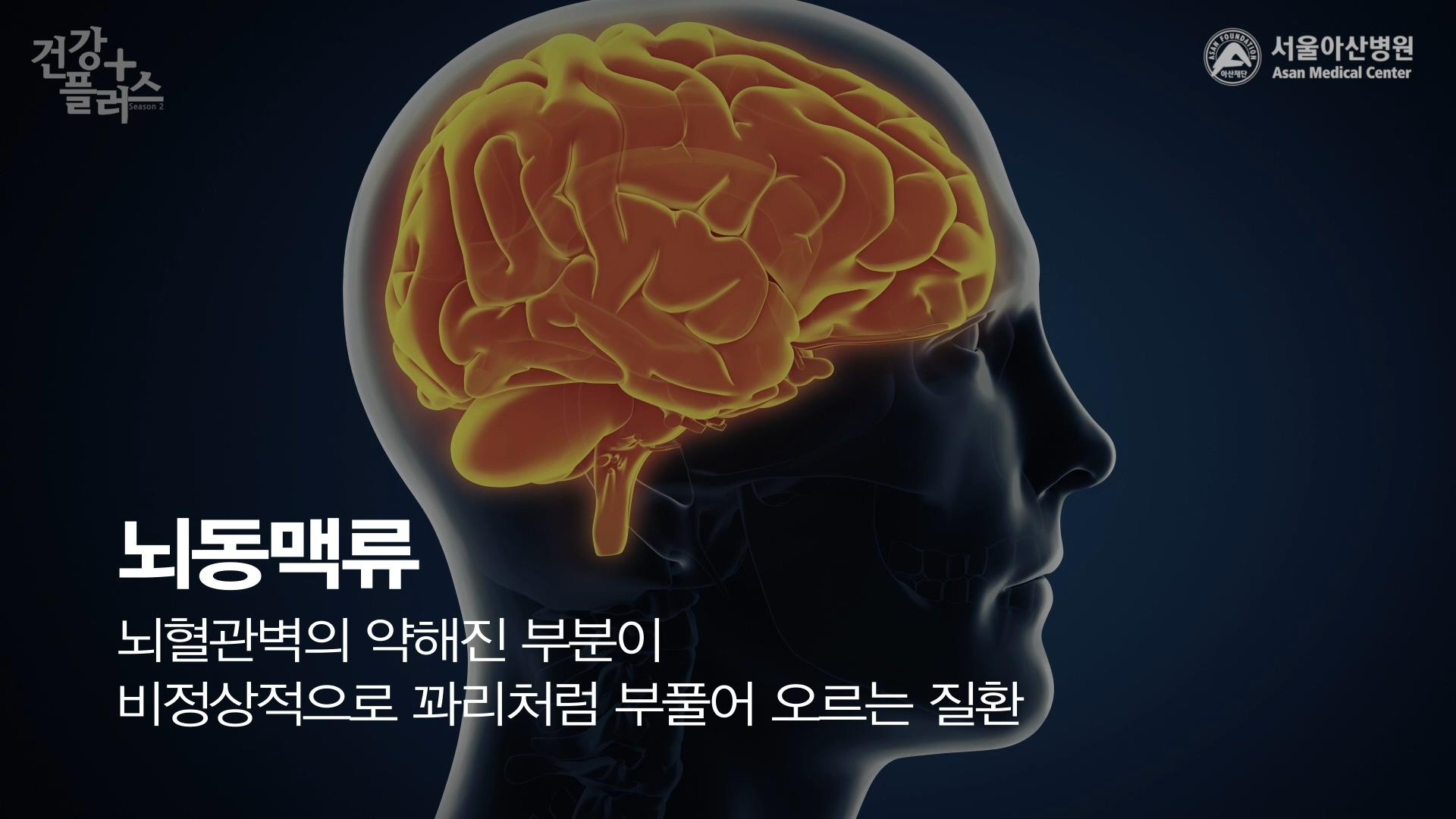 [건강+] 머릿속 시한폭탄 '뇌동맥류'